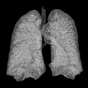 Il CAD come aiuto nella diagnosi precoce del tumore del polmone