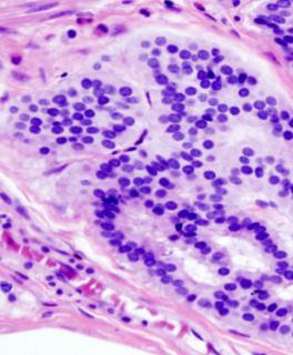 Nuove prospettive per il test basato sull'analisi combinata del DNA e dell'emoglobina fecali per l'individuazione del tumore colon retto