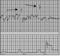 Cardiotocografia: lo strano caso del double and half counting