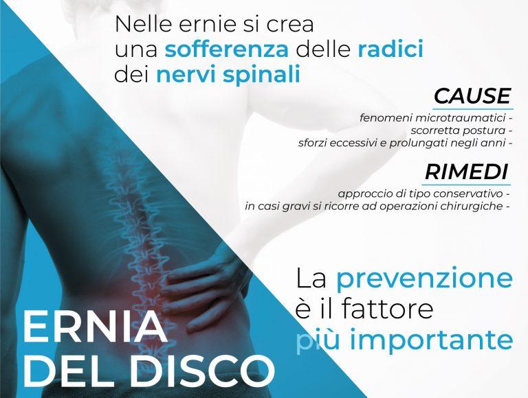 Ernia del disco: una delle principali cause di radicolopatia nervosa