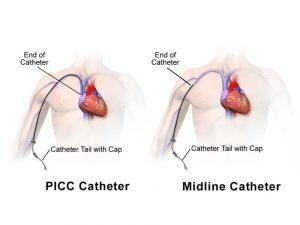 Una overview sui dispositivi di accesso vascolare tipo PICC/MIDLINE