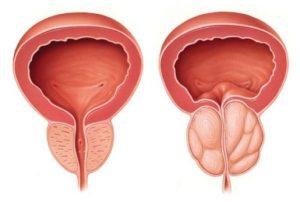 """Ipertrofia prostatica benigna """"in pillole"""""""