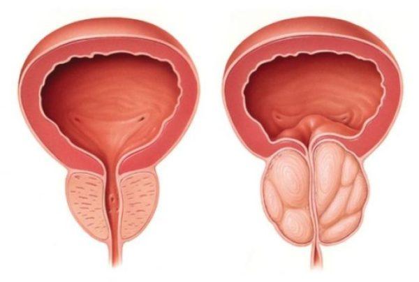 Prostatitis krónikus kezelési módszer prosztata merete