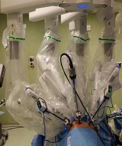 Prostatectomia Robotica per tumore della prostata: facciamo il punto