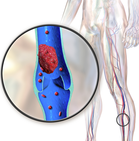 Un importante documento di revisione su similitudini e controversie nelle raccomandazioni internazionali sulla patologia venosa e linfatica degli arti inferiori