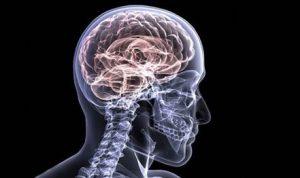 Implicazioni neurologiche dell'infezione da nuovo Corona-virus SARS-CoV-2