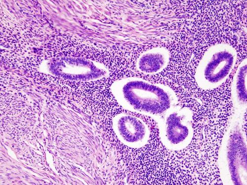 Trattamento dell'adenomiosi sintomatica mediante l'uso di sistemi intrauterini a rilascio di Levonorgestrel
