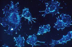 Focus sui carcinomi uroteliali dell'alta via escretrice, eterni secondi. Nuove prospettive arrivano dall'Inghilterra
