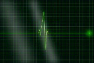 Traumi dell'aorta toraco-addominale e necessità di un Trauma team