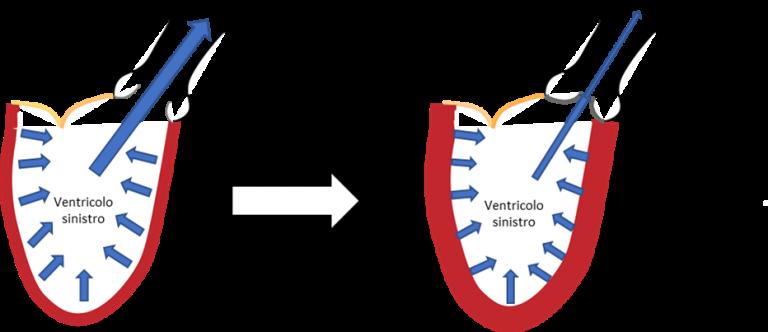 Stenosi valvolare aortica: considerazioni fisiopatologiche e nuove frontiere dell'imaging verso una stratificazione del rischio più accurata