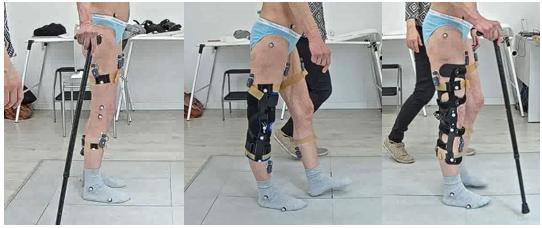 Ortesi dinamiche per il controllo dell'iperestensione di ginocchio in pazienti con sclerosi multipla: un caso clinico studiato con analisi del movimento.